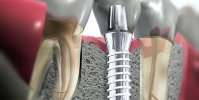 implantologia2