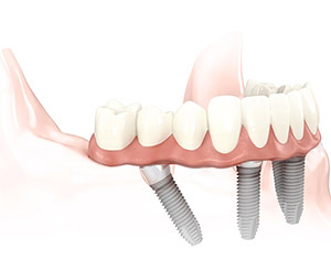 singolo dente mancante